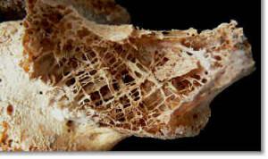 osteoporosis-hip